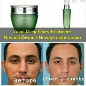 NovAge Ecollagen Serum And Cream For PITTED SKIN